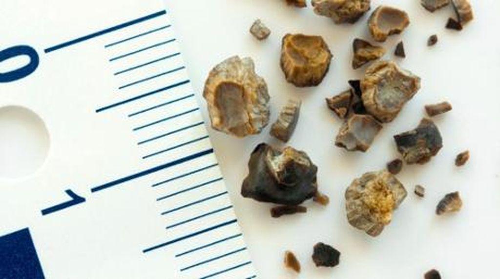 5 Kebiasaan Buruk Ini Berisiko Timbulkan Batu Ginjal