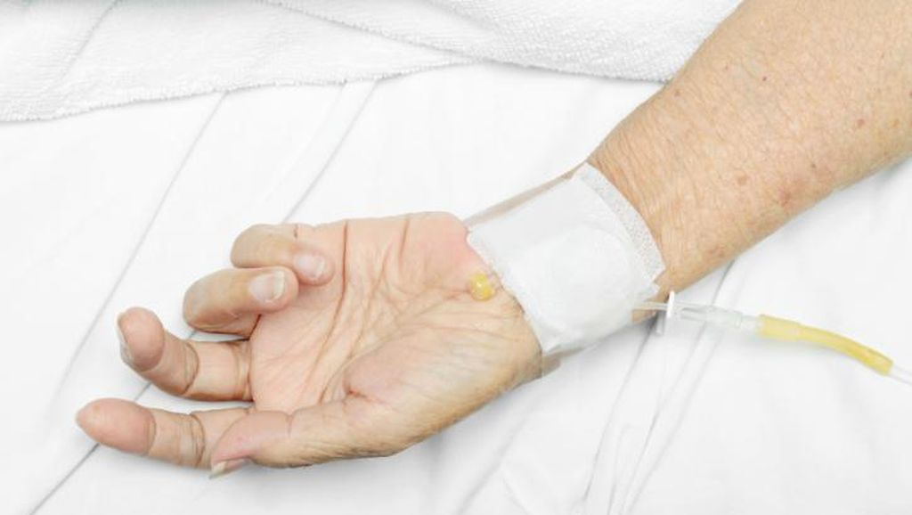 Lalai Lakukan Pemeriksaan Dini Picu Kematian Akibat Kanker Serviks