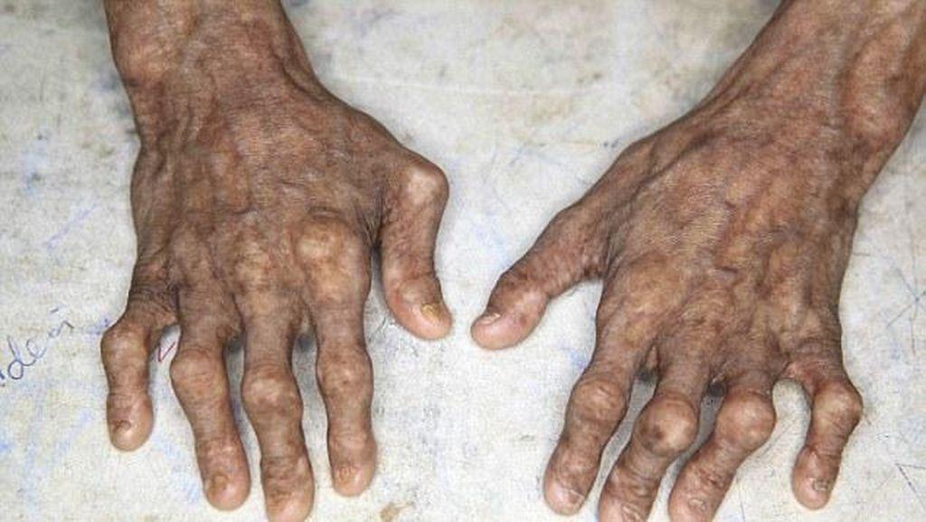 Berumur 21 Tahun, Inikah Pasien Progeria Tertua di Dunia?