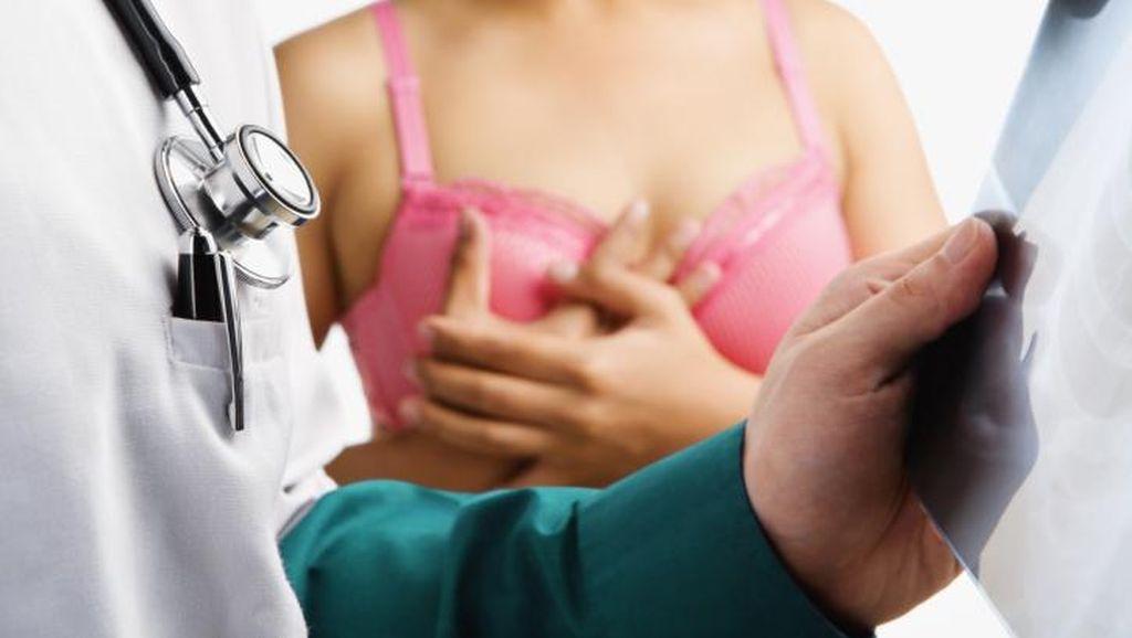 3 Hal Ini Kerap Membuat Kanker Payudara Terlambat Ditangani