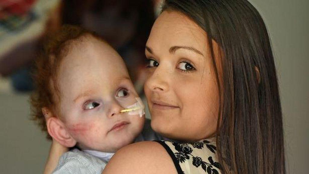 Kisah Aaron, Bocah Tanpa Otak yang Akhirnya Bisa Panggil Ibunya