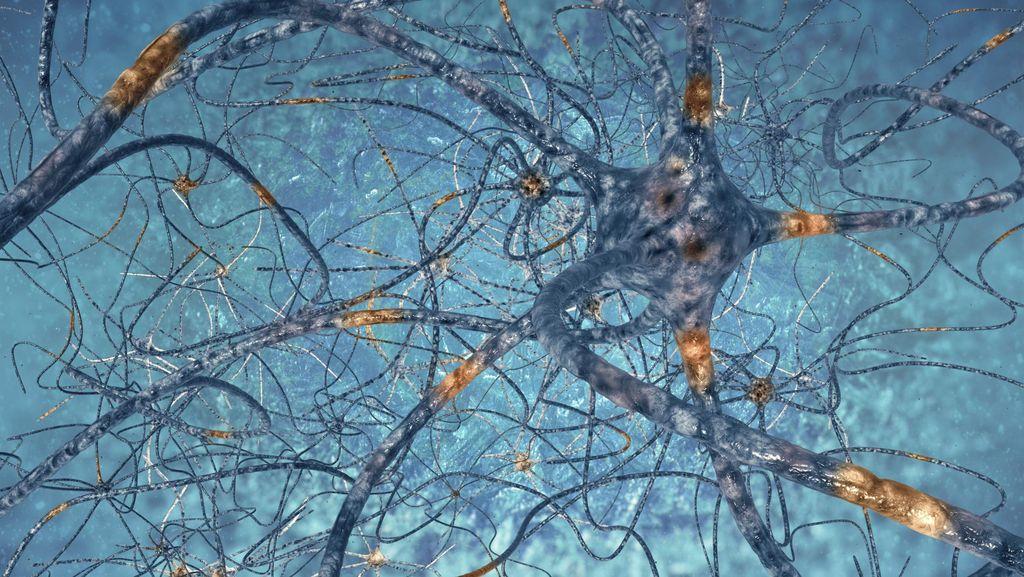 Begini Kondisi Otak Pengidap Sindrom Kepala Meledak