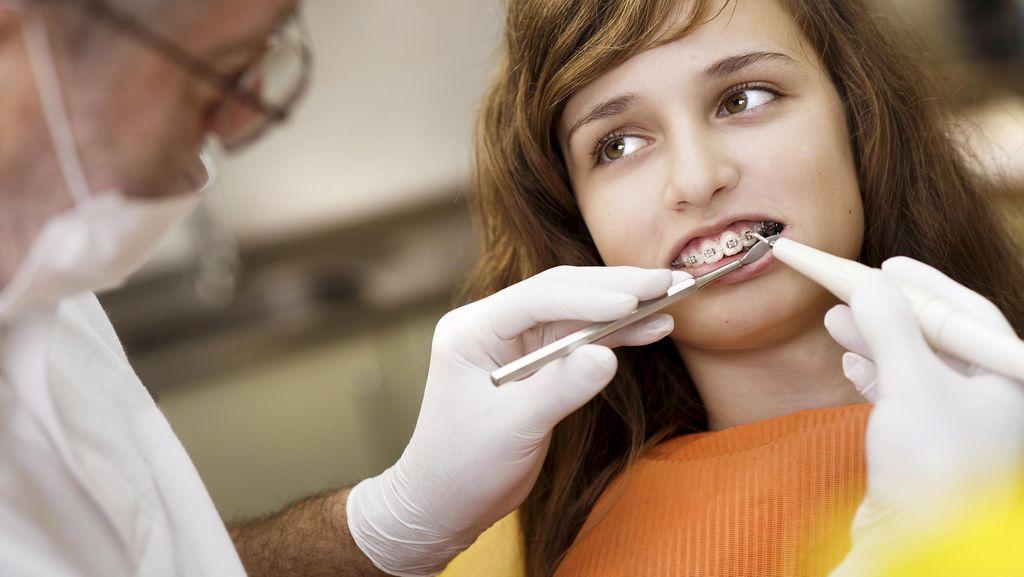 Alasan Kenapa Makin Banyak Orang Memerlukan Kawat Gigi