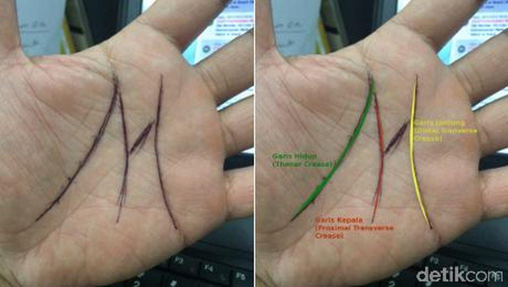 Garis Tangan Bertanda M, Benarkah Istimewa? Yuk Tanya Dokter