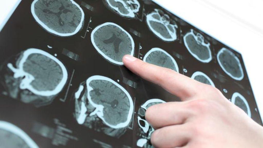 Wanita Ini Mengalami Perubahan Perilaku yang Tak Biasa Akibat Tumor Otak