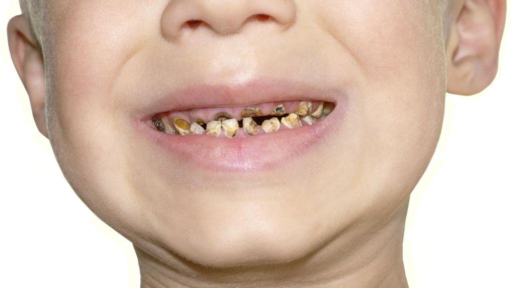 Catat! Kebiasaan-Kebiasaan yang Bisa Bikin Gigi Anak Berlubang