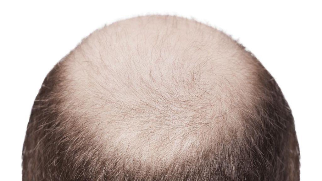 Punya Bakat Botak atau Tidak? 200-an Penanda Genetik Bisa Memprediksinya