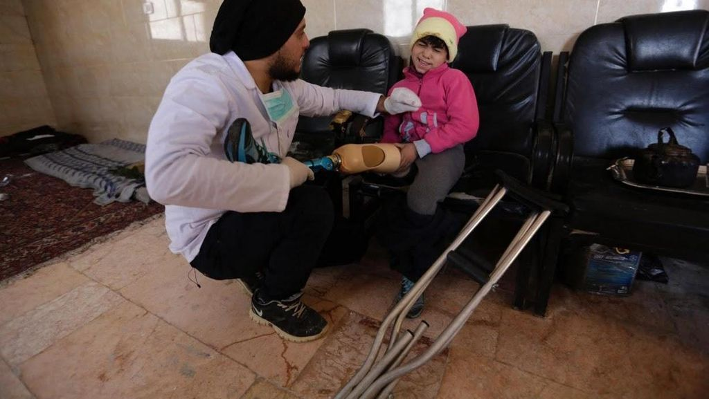 Kisah Dua Mahasiswa Suriah, Tinggalkan Kuliah dan Jadi Pemasang Kaki Palsu