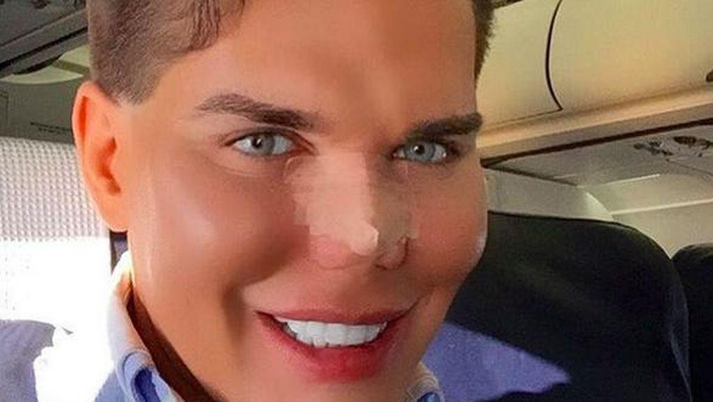 50 Kali Operasi Plastik, Pria Mirip Ken Barbie Ini Kesulitan Bernapas