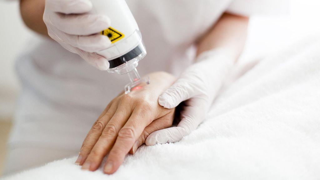 Yuk Ketahui Cara Kerja Terapi Laser untuk Bantu Hilangkan Tato