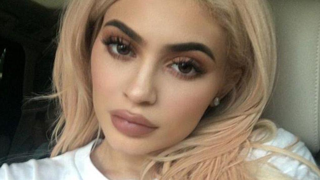 Bukan Seperti Kylie Jenner, Ini Bentuk Bibir Sempurna Menurut Dokter