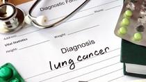 Langkah-langkah Mencegah Kanker Paru