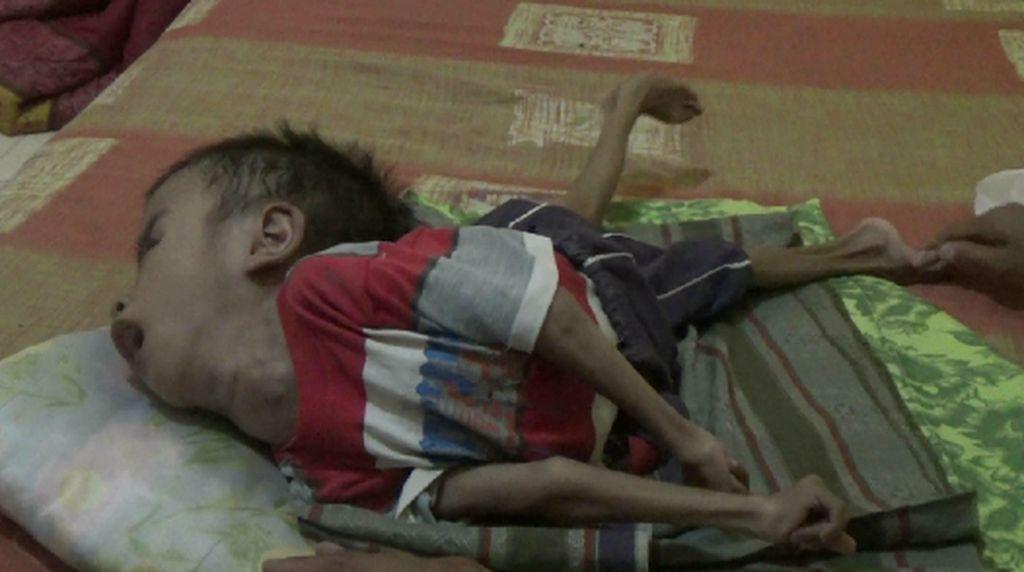 Kisah Rizki, Anak Umur 8 Tahun yang Lumpuh Total Karena Hidrosefalus