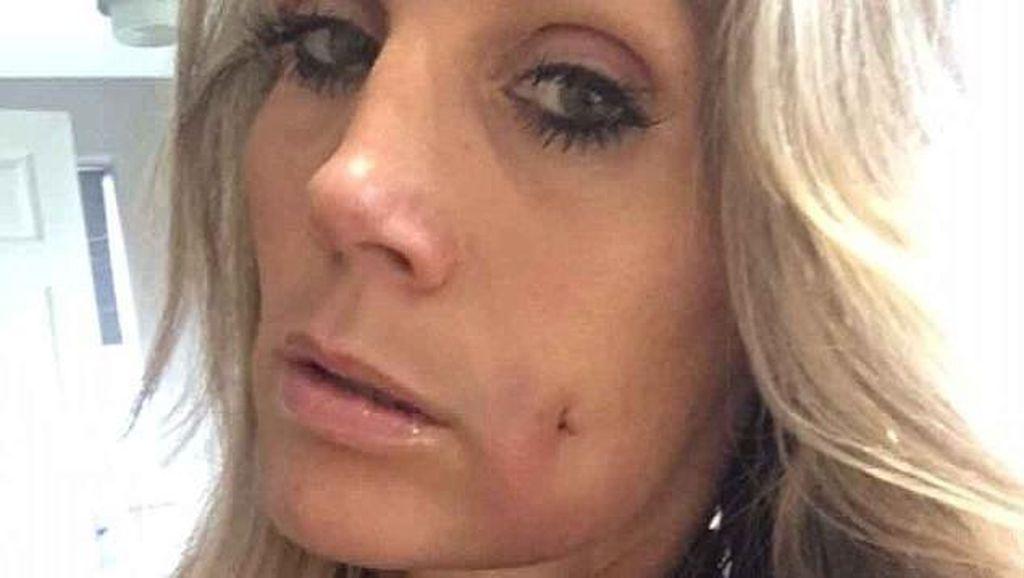 Wanita Ini Habiskan Rp 22 Jutaan Agar Punya Lesung Pipit Seperti Anaknya