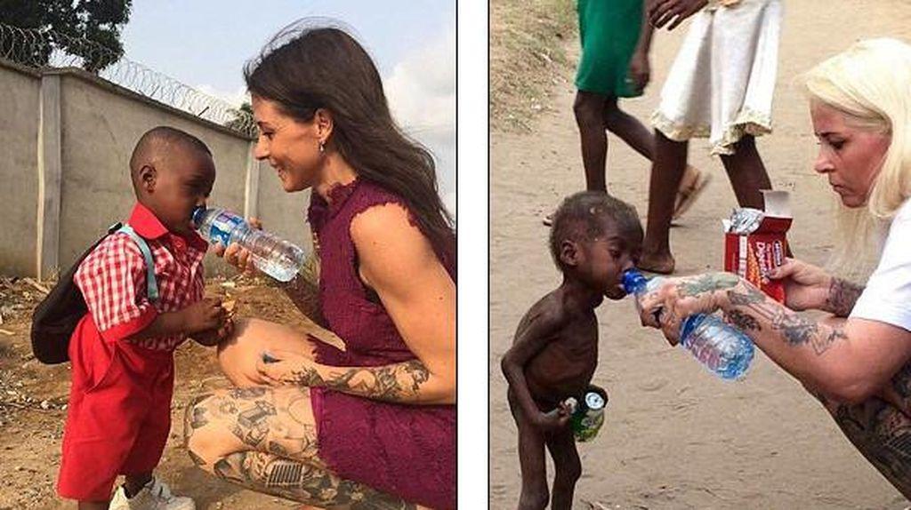 Potret Haru Dulu dan Sekarang Bocah Nigeria yang Dibuang