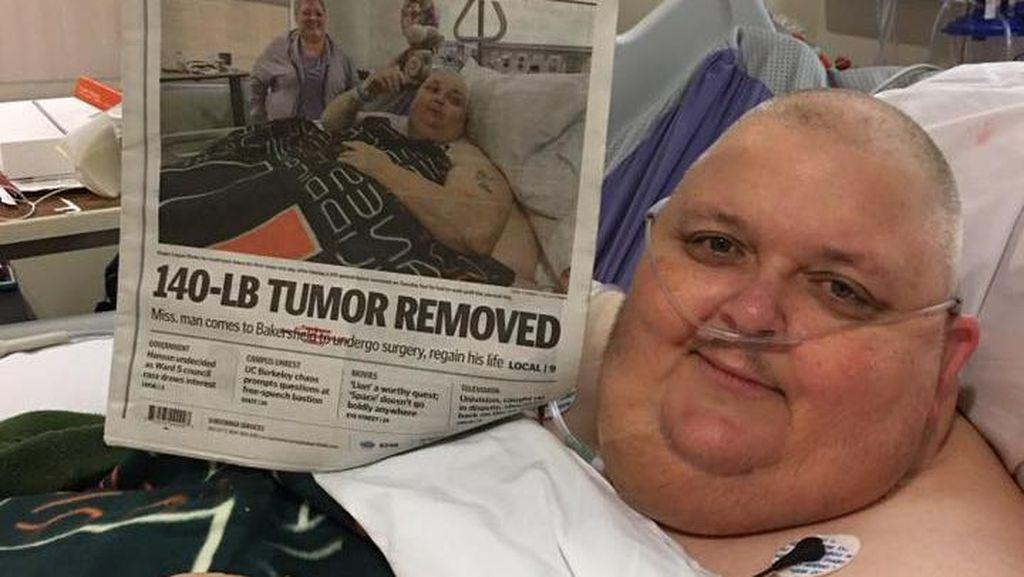 Mulanya Dikira Lemak, Benjolan 59 Kg Ini Ternyata Tumor