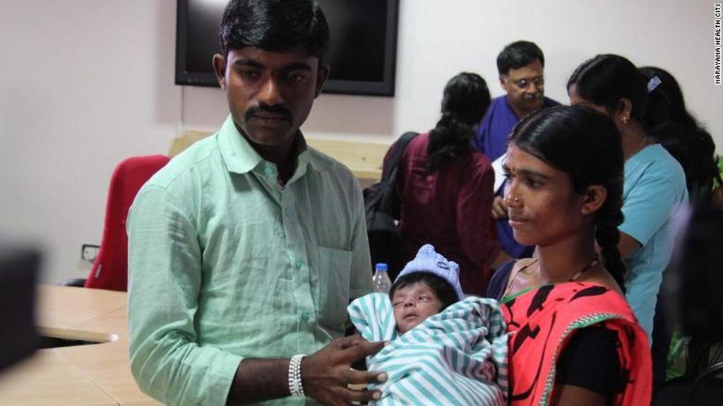 Bayi dengan 4 Kaki dan 2 Penis Ini Akhirnya Sukses Dioperasi