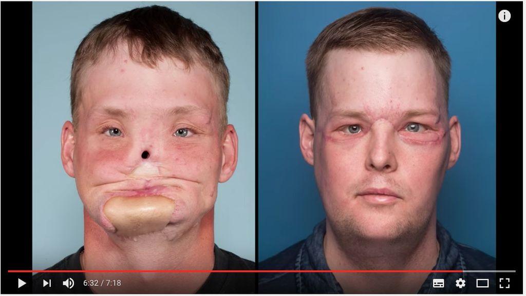 Jalani Transplantasi Wajah, Kini Andy Punya Wajah Baru
