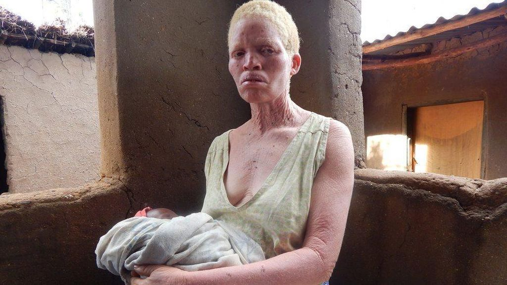 Kisah Manusia Albino yang Selamat dari Perburuan di Afrika