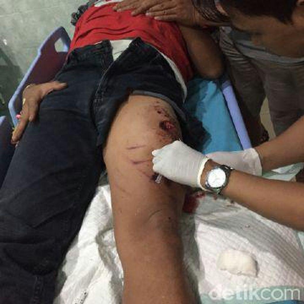 Ini Kronologi Pelemparan Bondet yang Menimpa Polisi Mojokerto