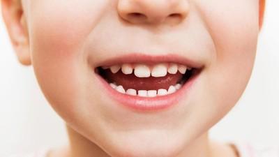 Duh! Si Kecil Giginya Kuning, Apa Ya Penyebabnya?