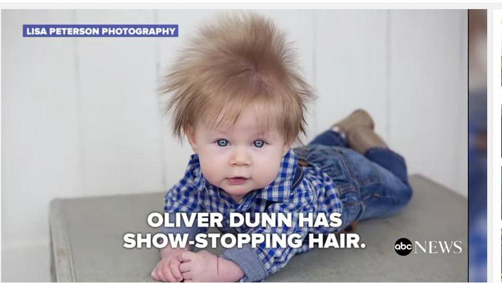 Bayi Ini Lahir dengan Kepala Sudah Berambut Lebat