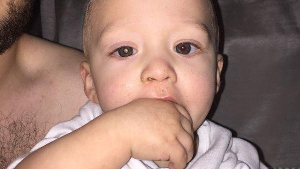 Berawal dari Foto Pakai Flash, Bayi Ini Diketahui Kena Retinoblastoma