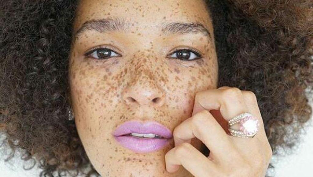 Di-bully karena Wajah Dipenuhi Bintik, Nikia Jadi Model yang Inspiratif