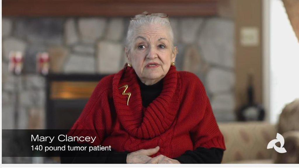 Separuh Bobot Hilang Setelah Operasi Pengangkatan Tumor di Perut