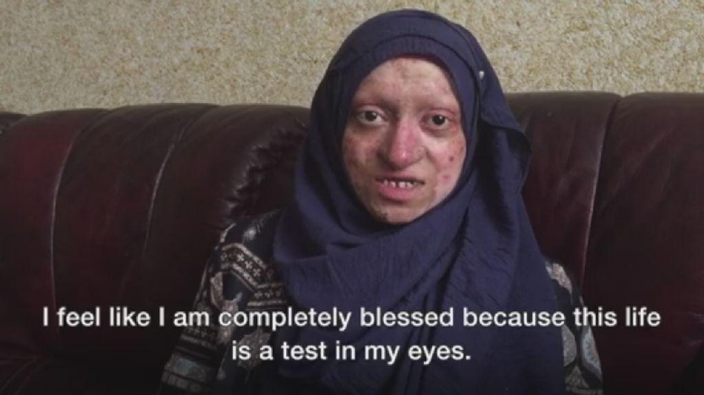 Karena Kelainan Genetik, Kulit Wanita Ini Rentan Copot dan Terluka