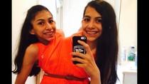 Kisah Kembar Dempet yang Tak Terpisahkan Hingga Remaja