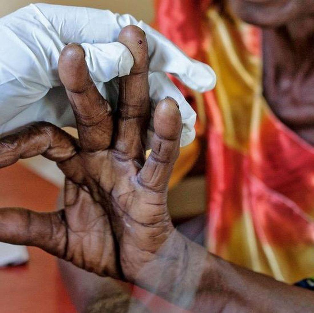 Tiga Negara Lakukan Vaksinasi Massal Malaria Pertama di Dunia