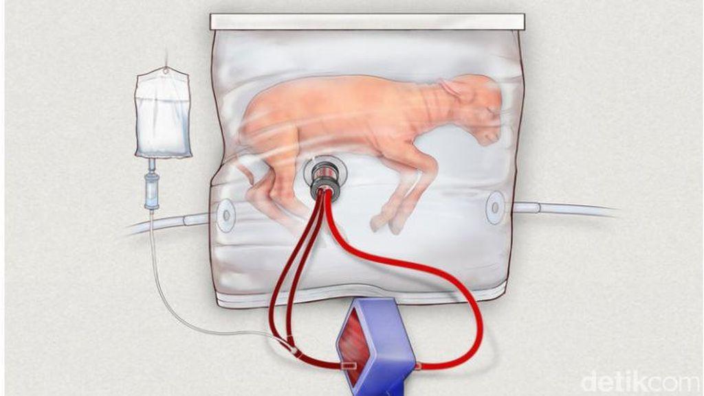 Kantong Transparan Ini adalah Rahim Buatan untuk Bayi Prematur