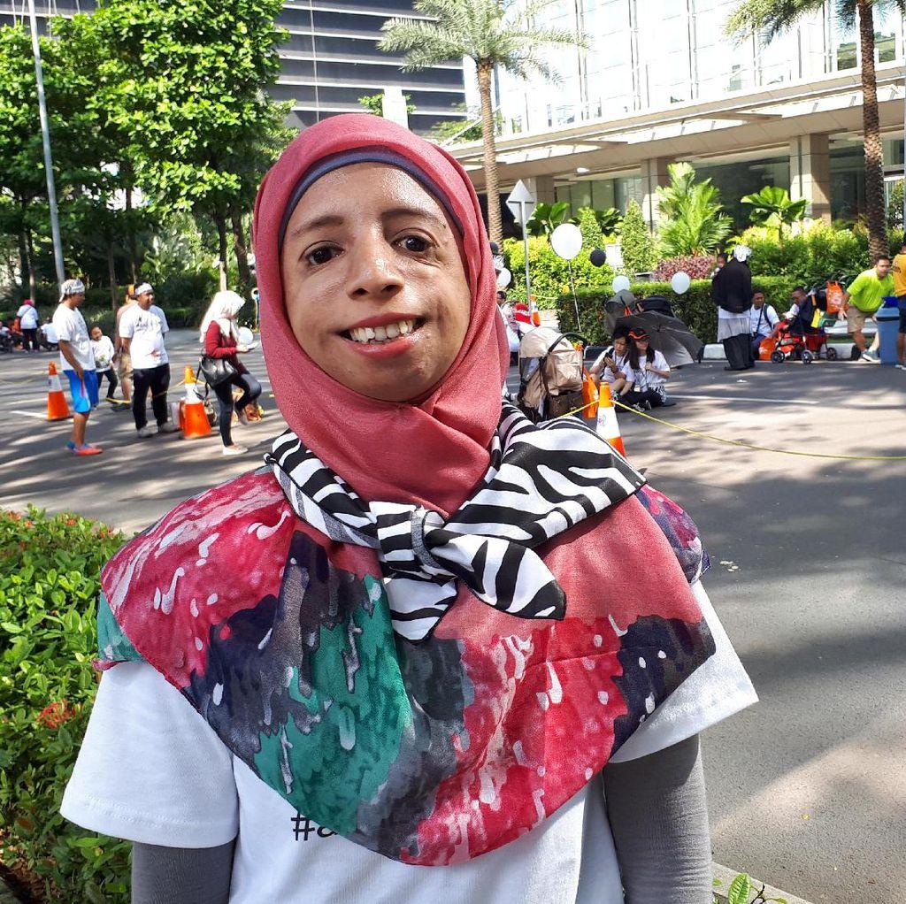 Kisah Lisa, Pengidap Sindrom Langka yang Kini Jadi Guru di Bekasi
