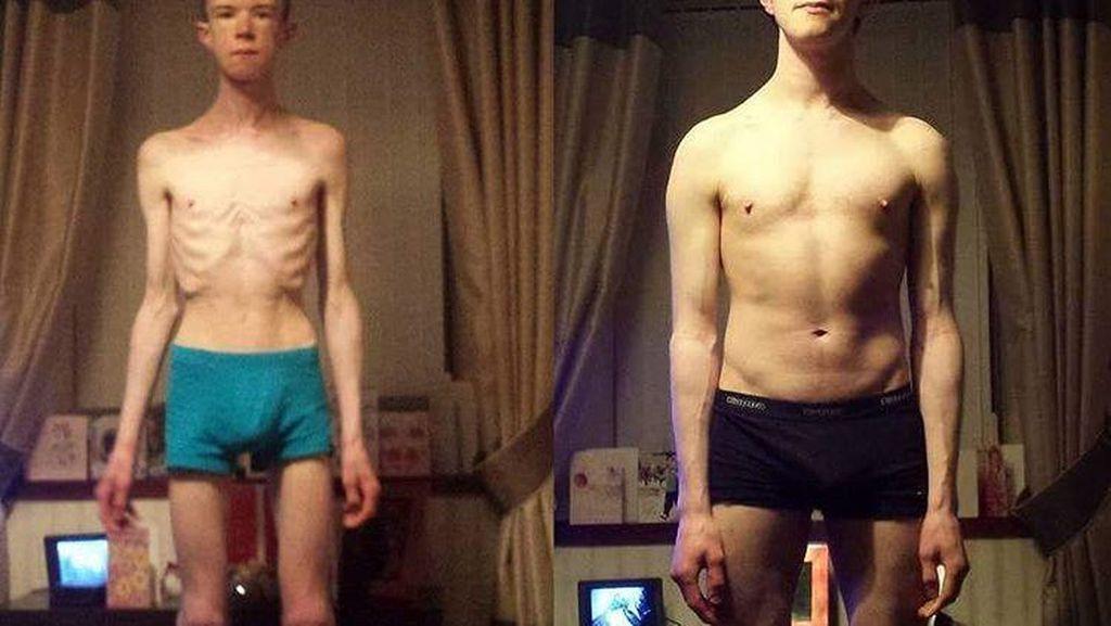 Kisah Pria Sembuh dari Anoreksia Berkat Acara Kompetisi Memasak