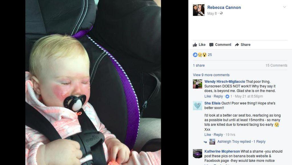 Kasihan, Wajah Bayi Ini Kena Luka Bakar karena Tabir Surya