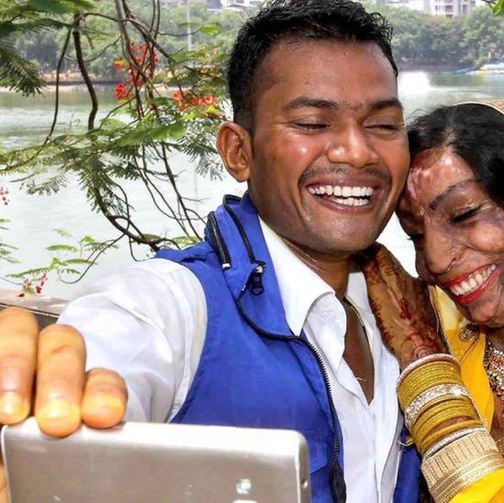 Korban Serangan Air Keras di India Menikah Berkat Salah Sambung