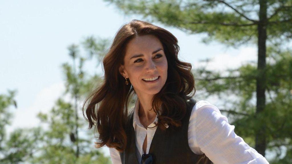 Hidung Kate Middleton Jadi Tren Operasi Plastik Paling Populer