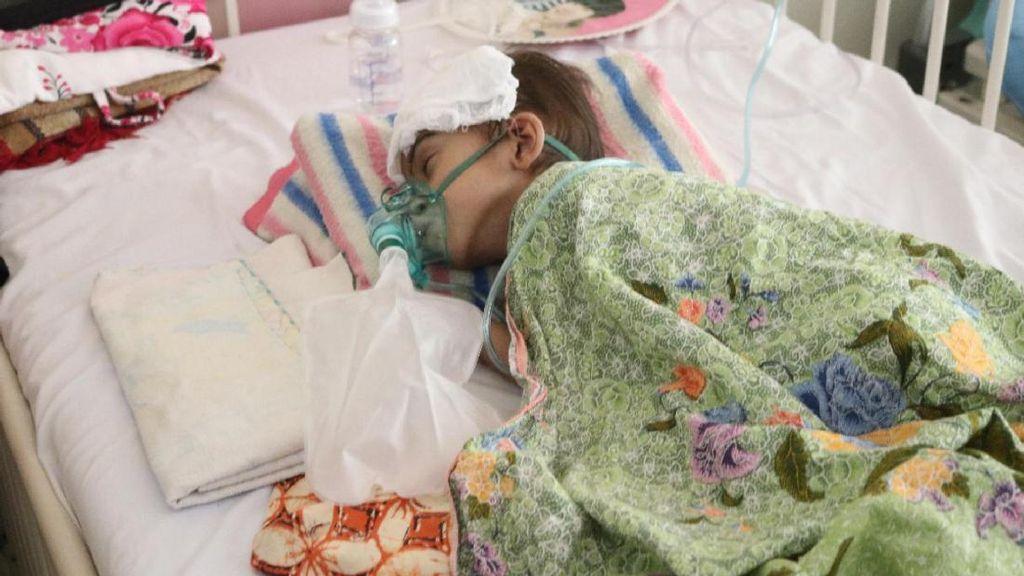 Kasihan, Bocah 4 Tahun di Aceh Alami Bocor Jantung dan Gizi Buruk