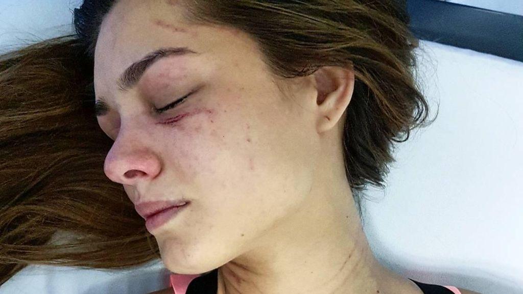 Viral, Model Venezuela Unggah Foto Luka Cakar di Wajah dan Tubuhnya