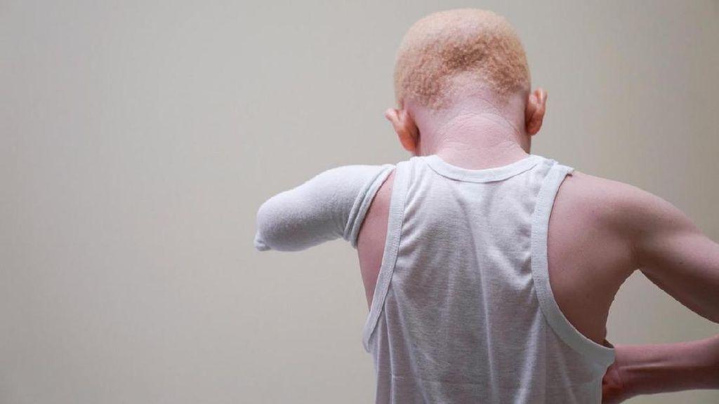 Potret Anak-anak Hantu Albino Asal Tanzania Korban Mutilasi