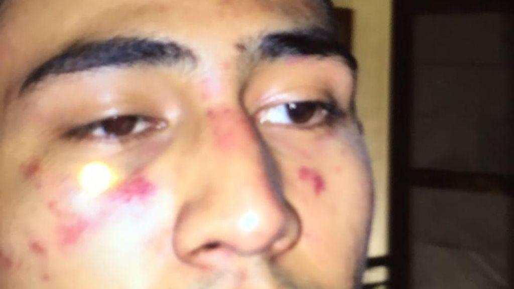 Ini Foto Babak Belur Anak Jeremy Thomas Usai Dikeroyok Oknum Polisi
