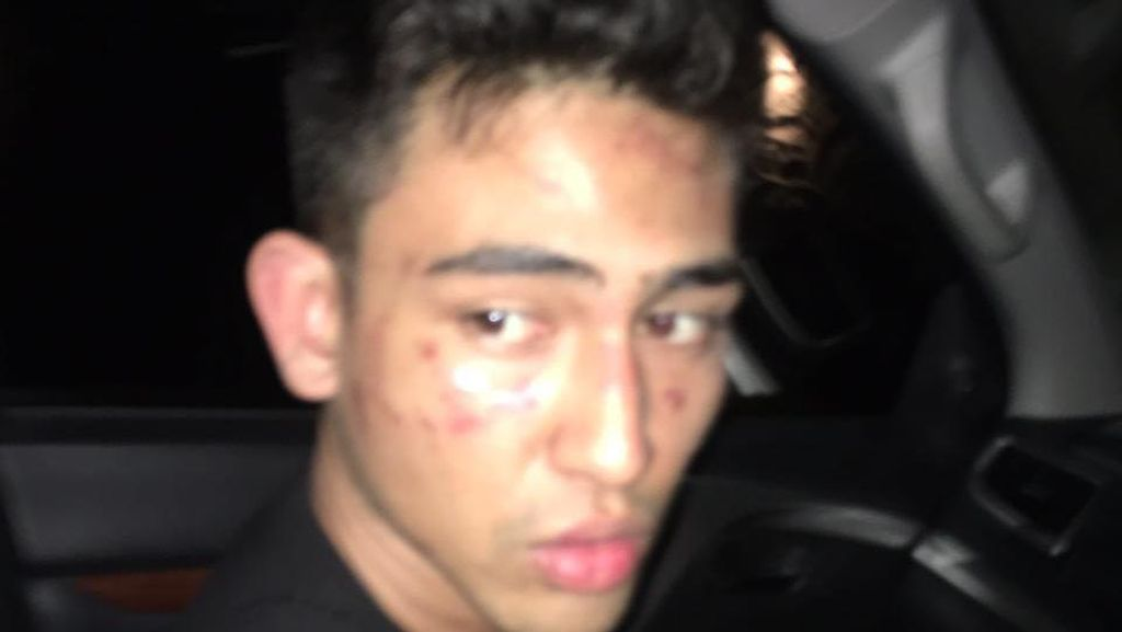 Sudah di Bandara, Anak Jeremy Thomas Batal ke Singapura karena Dicekal