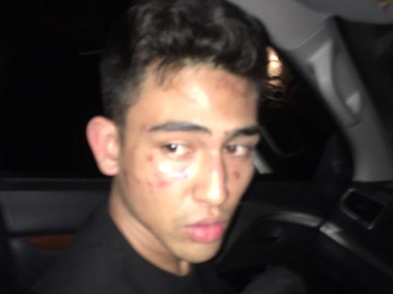 Murka Anaknya Disiksa Oknum Polisi, Jeremy Thomas: Ini Brutal dan Maniak!