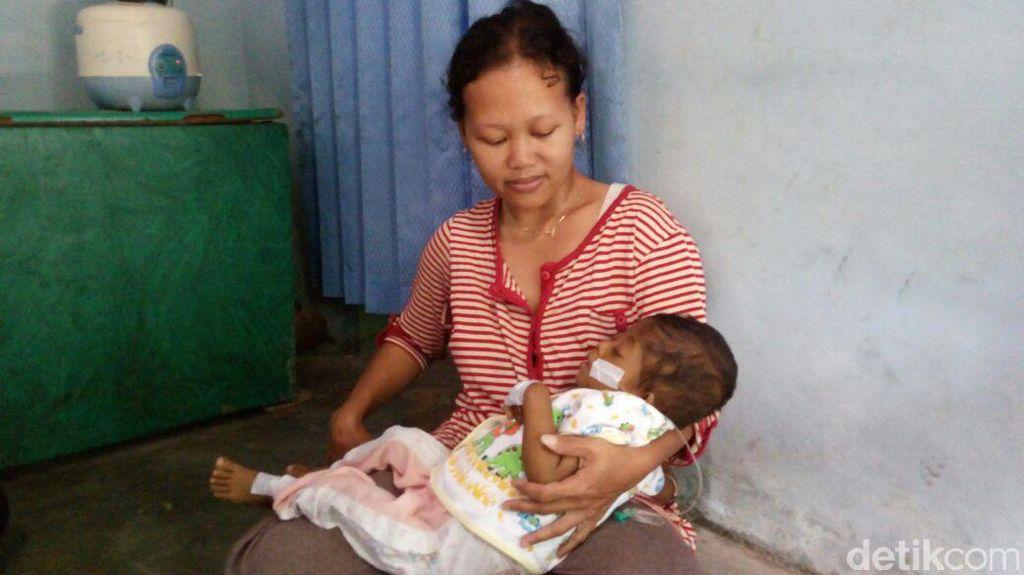 Bayi dari Keluarga Tak Mampu di Magelang ini Menderita Kelainan Hati