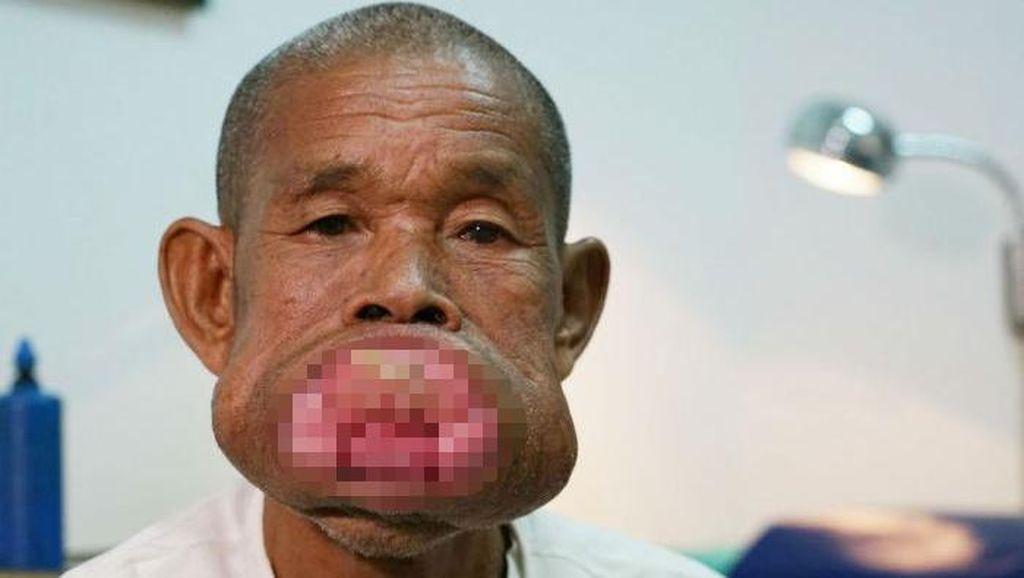 Mulut Pria Ini Penuh Tertutup Tumor, Begini Kondisinya Pasca Operasi