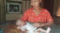 Ibu di Serang Tak Mampu Biayai Berobat Anaknya