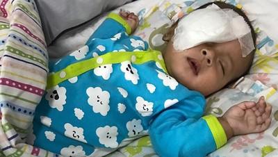Apa Sih Penyebab Bayi Kena Katarak? Yuk Tanyakan ke Pak Dokter