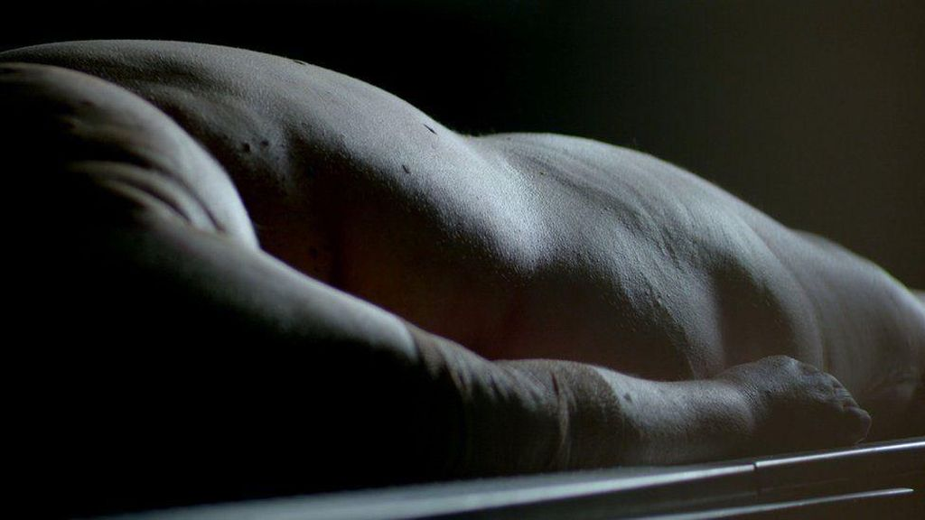 Foto Autopsi Mengerikan Tunjukkan Dampak Lemak Berlebih Pada Tubuh