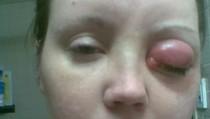 Cerita Wanita Berjuang 10 Tahun Melawan Parasit di Mata karena Softlens